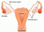 Эндометриоз: лечение, отзывы и симптомы