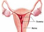 Удаление полипа эндометрия - гистероскопия